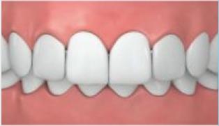 vorstehende zähne bei erwachsenen